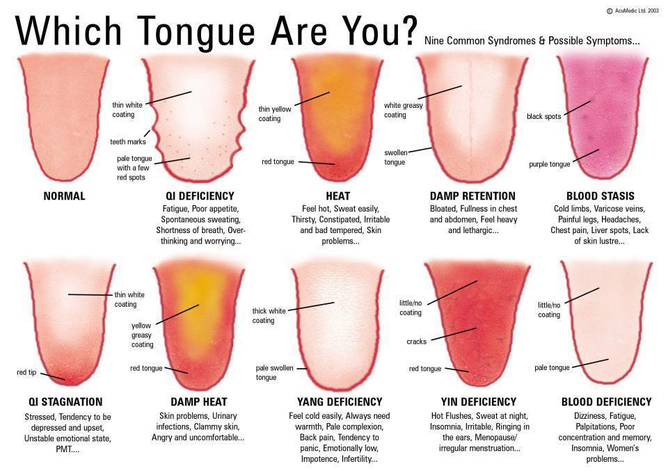 Which Tongue Are You Purple Dragon Community Acupuncture